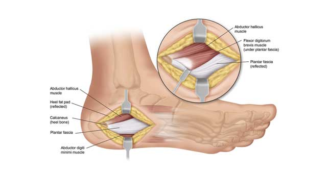 Plantar Fasciitis Surgery – Is It Right For You?