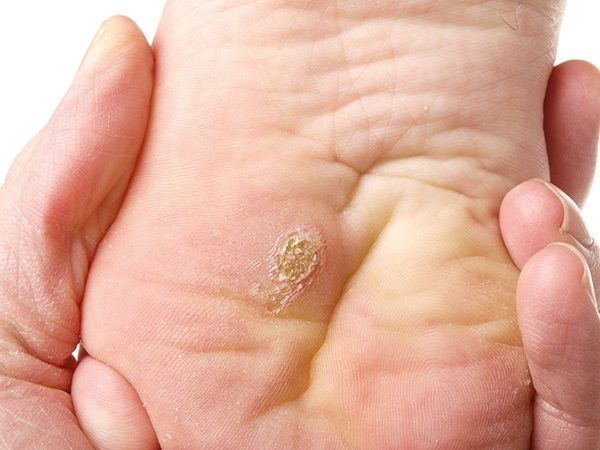 painful plantar wart